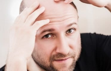 Hair Transplantation Clinic in Kochi